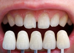 Veneers at Merrillville Family Dentist