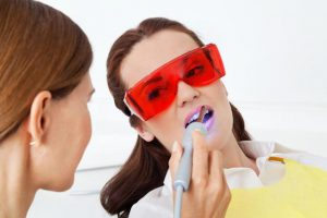 Dental Reviews and Teeth Whitening