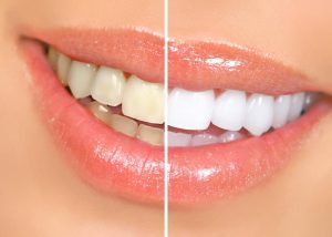 Dr. Kostides Teeth Whitening