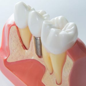 Dr. Kostides Dental Implants
